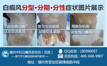 肢端型白癜风的典型症状有哪些